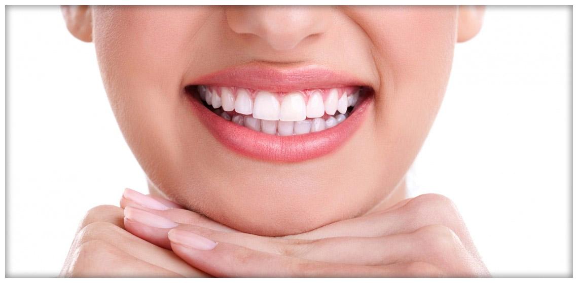 Listino Prezzi Impianto Dentale Bellusco