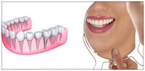 Implantologia Dentale carico immediato