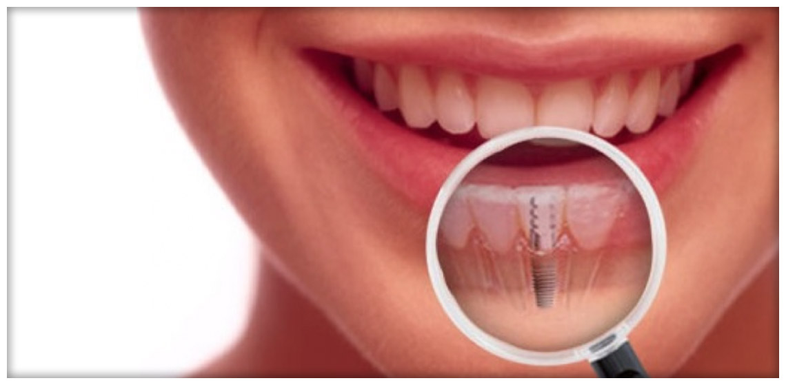 Costo Impianto Dentale Legnano